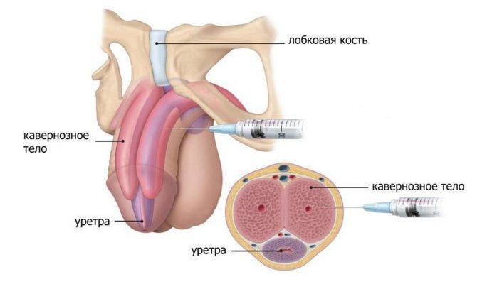 Внутрикавернозные инъекции в пенис