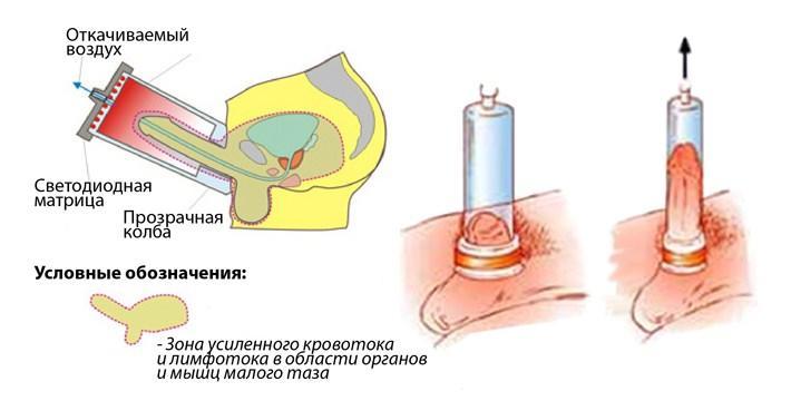 Проведение ЛОД-терапии