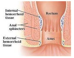 Внутренние и внешние геморроидальные подушки